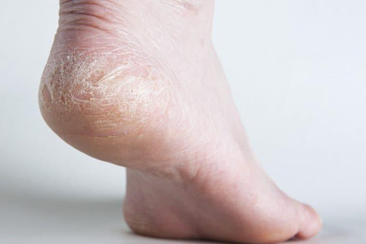 Đừng bỏ lỡ những cách chữa khô ngứa da do mắc bệnh tiểu đường